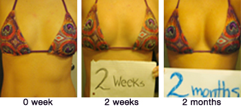 Boost Curves Breasts Enhancement Pills Before and After