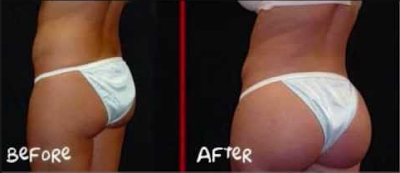 Curves Butt Enhancement Pills Before And After