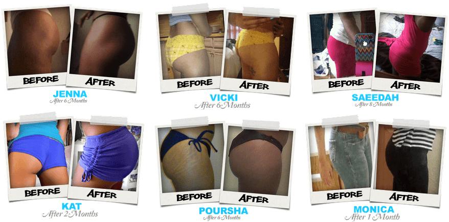 Gluteboost Butt Enhancement Pills Before and After Photos