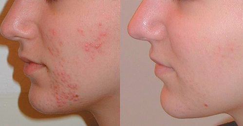 Benzoyl Peroxide Wash Before And After