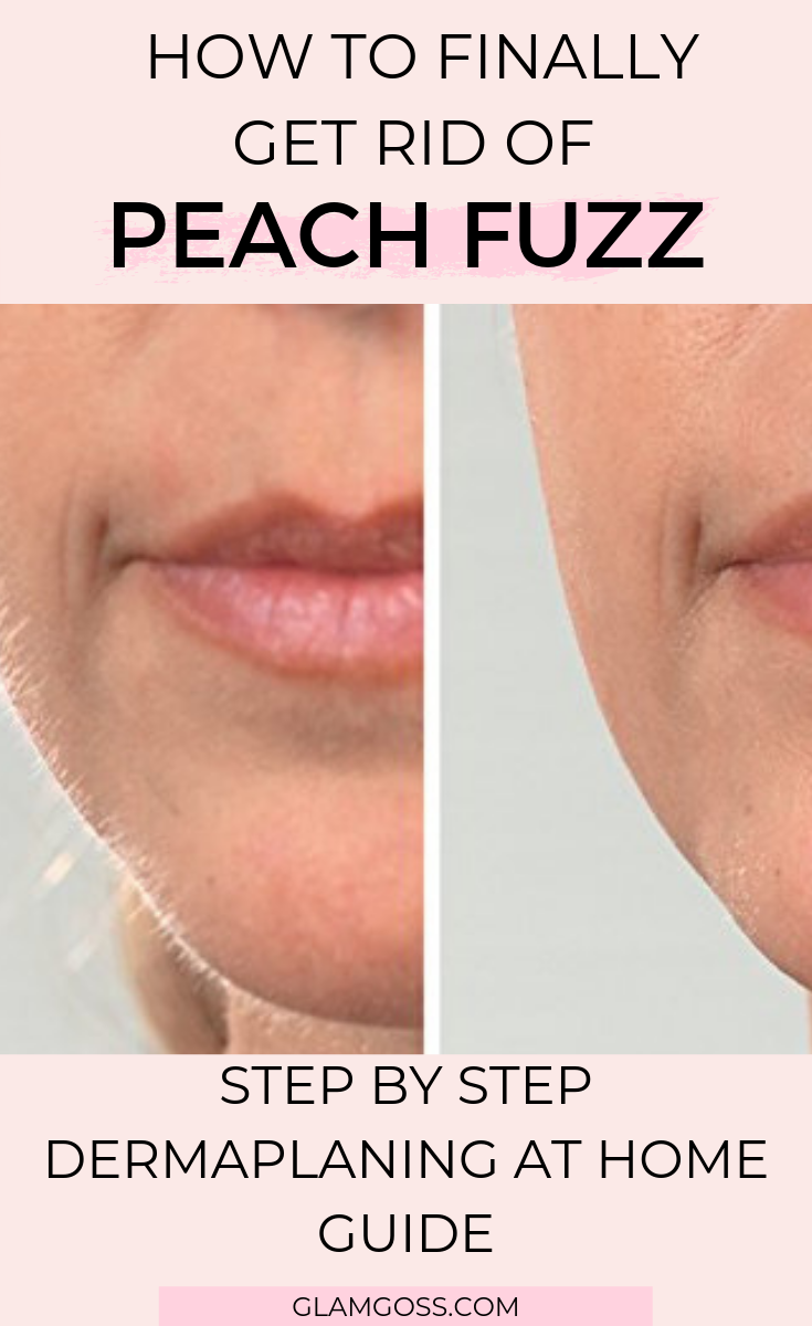how to get rid of peach fuzz dermaplaning guide